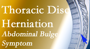 Amelia Chiropractic Clinic treats thoracic disc herniation that for some patients prompts abdominal pain.