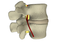 pinched nerve in the lower back