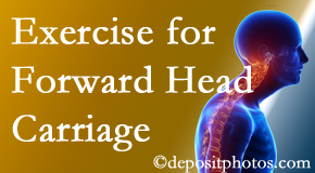 Fernandina Beach chiropractic treatment of forward head carriage is two-fold: manipulation and exercise.