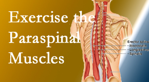 Amelia Chiropractic Clinic describes the importance of paraspinal muscles and their strength for Fernandina Beach back pain relief.