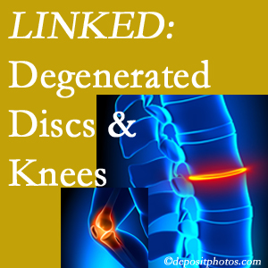 Degenerated discs and degenerated knees are not such strange bedfellows. They are seen to be related. Fernandina Beach patients with a loss of disc height due to disc degeneration often also have knee pain related to degeneration.